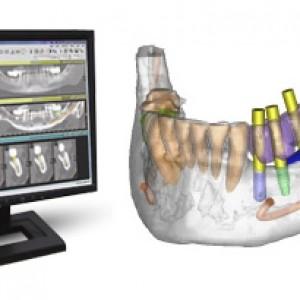 Diseño de implantes dentales gracias a la cirugía guiada.