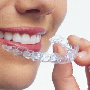 ortodoncia invisible, invisalign en boadilla, ortodoncia en boadilla, alinear sonrisa en boadilla