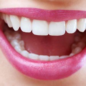 reforzar la confianza, aumentar la autoestima, tratamiento dental en boadilla, carillas dentales en boadilla, dentista en boadilla, odontología en boadilla, clínica dental en boadilla, invisalign en boadilla, ortodoncia en boadilla