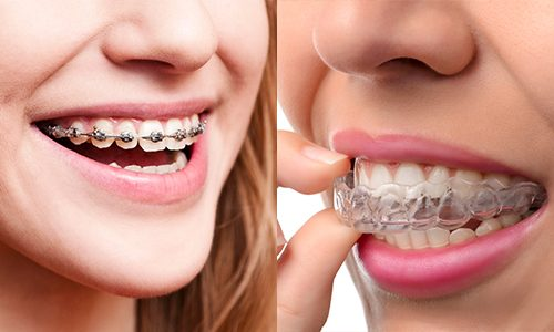 Invisalign vs brackets