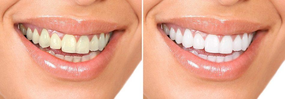 blanqueamiento de dientes en majadahonda, blanqueamiento dental majadahonda, dentista majadahonda, odontólogo majadahonda, odontología majadahonda, dentista majadahonda, clínica dental majadahonda, estética dental majadahonda, sonrisa radiante majadahonda, dientes blancos majadahonda