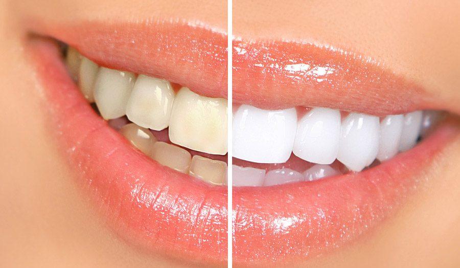 blanqueamiento dental majadahonda