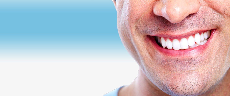 carillas dentales, carilla dental, estética dental, odontología estética, mejora tu sonrisa, dientes perfectos, dentista, clínica dental