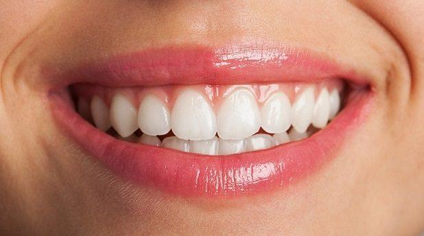 carillas dentales de porcelana, carillas en boadilla, carillas dentales en boadilla, sonrisa en boadilla, estética dental en boadilla, dentista en boadilla, odontólogo en boadilla, odontología en boadilla, clínica dental en boadilla, odontología cosmética en boadilla