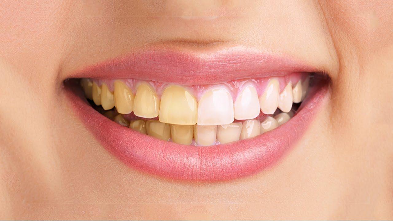 decoloración dental, decoloración de los dientes, estética dental, cambio de color de los dientes, dientes amarillos, dientes blancos, blanqueamiento dental