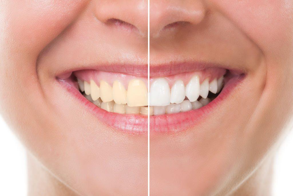 decoloración dental en majadahonda, dientes amarillos en majadahonda, dentista en majadahonda, clínica dental en majadahonda, dientes blancos en majadahonda, blanqueamiento dental en majadahonda, odontologia en majadahonda
