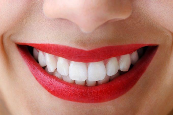 decoloración en los dientes, decoloración dental, dientes amarillos, sonrisa radiante, odontología majadahonda, dentista en majadahonda, clínica dental en majadahonda