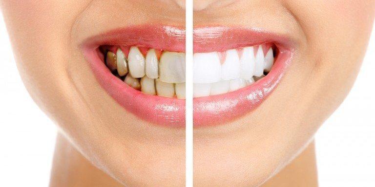 dientes amarillos en majadahonda
