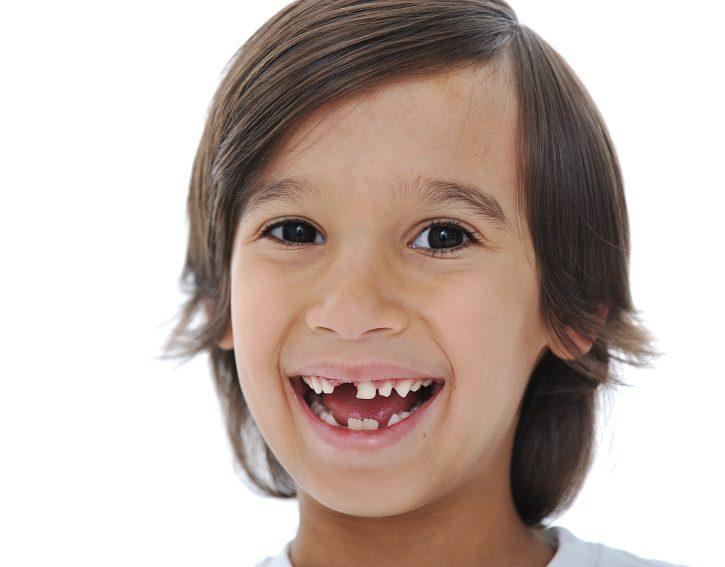 dientes primarios en boadilla, dientes de leche en boadilla, odontopediatra en boadilla, odontopediatria en boadilla, dentista infantil boadilla, dentista para niños boadilla, odontólogo para niños boadilla, clínica dental boadilla, odontología boadilla, higiene oral boadilla