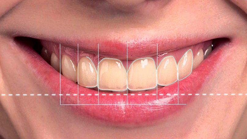 diseño de sonrisa en majadahonda