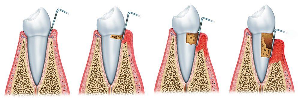 enfermedad periodontal en boadilla