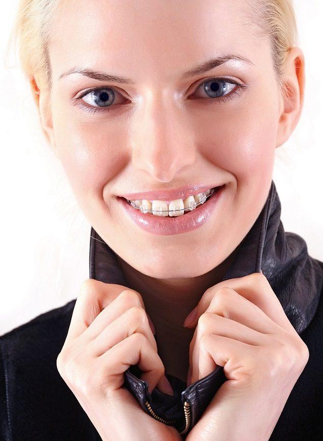 información sobre la ortodoncia, brackets, aparato dental, ortodoncia invisible, invisalign