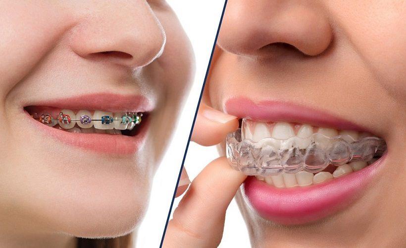 ortodoncista en majadahonda