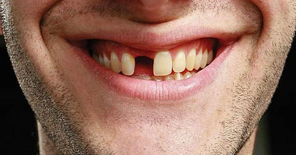 pérdida de dientes en boadilla, dientes ausentes en boadilla, odontólogo boadilla, odontología boadilla, clínica dental boadilla, revisión dental boadilla, sonrisa boadilla, estética dental boadilla, implante dental boadilla