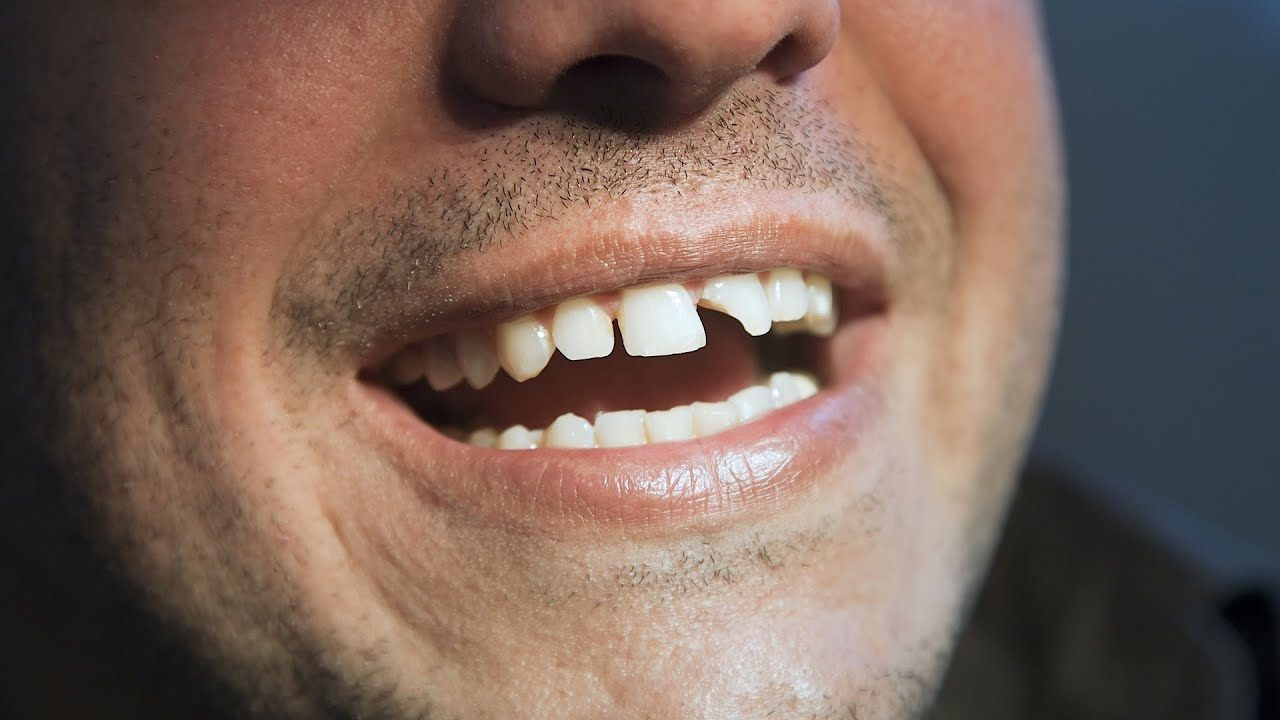 peligros de un diente roto, sensibilidad dental majadahonda, dentista majadahonda, clínica dental majadahonda, odontología majadahonda, odontólogo majadahonda, higiene oral majadahonda, revisión dental majadahonda, infecciones dentales majadahonda, diente roto majadahonda