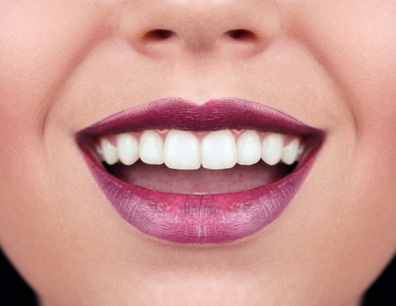 color de los dientes