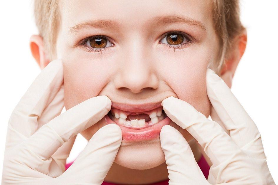 revisión dental infantil