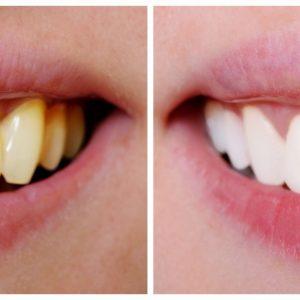 el color de los dientes