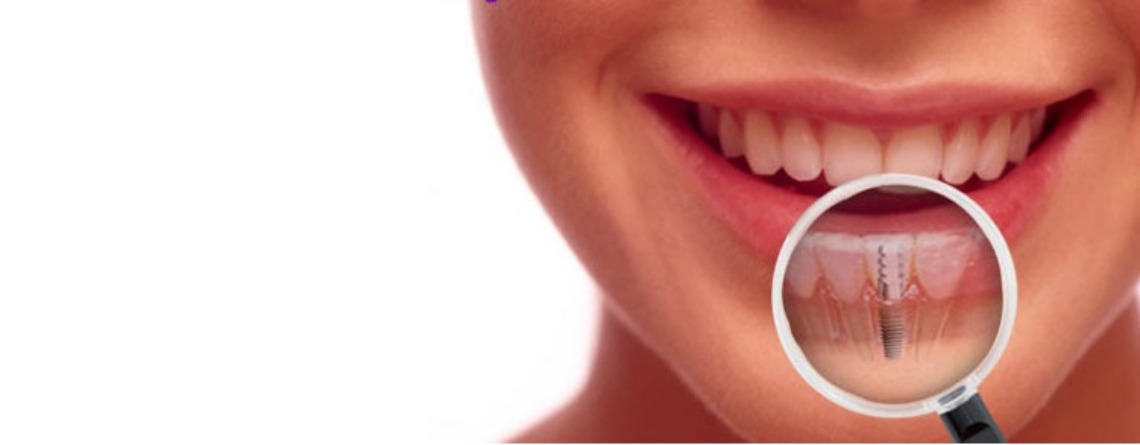 beneficios de los implantes dentales