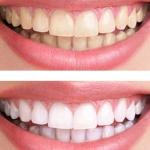 es seguro el blanqueamiento dental