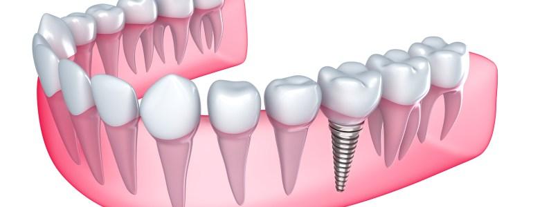 implante dental majadahonda