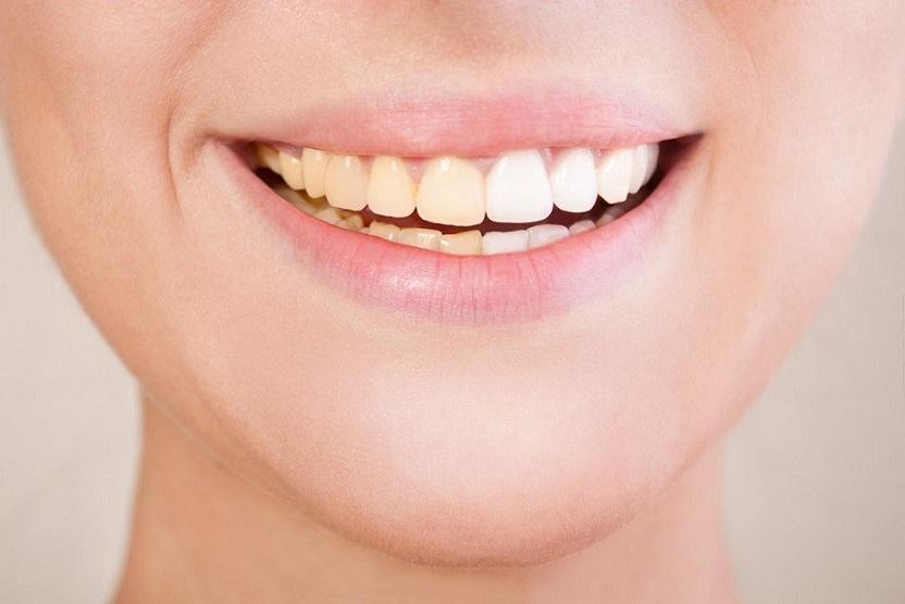 como evitar los dientes amarillos