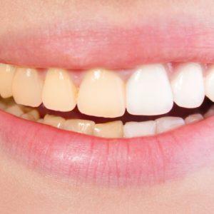 dientes amarillos en boadilla