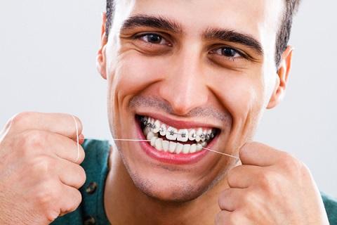 brackets para adultos, ortodoncia en adultos, aparato dental en personas mayores