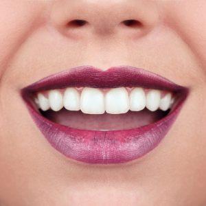 beneficios de la odontología estética, estética dental, carillas dentales, ortodoncia, invisalign, dentista en majadahonda, clínica dental en majadahonda