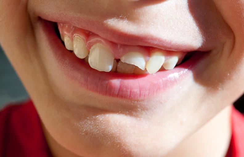 diente roto, rotura del diente, corona dental en boadilla, dentista en boadilla, clínica dental en boadilla