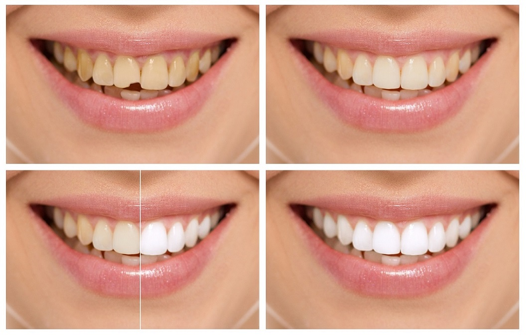 odontología estética en boadilla, odontología cosmética, carilla dental en boadilla, implante dental en boadilla, estética dental en boadilla