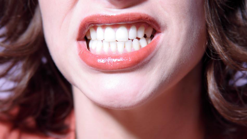 tipos de enfermedad periodontal, enfermedad de las encías, encías sangrantes, sangrado de las encías, revisión dental, dentista, clínica dental