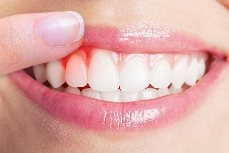los síntomas de la enfermedad de las encías, encías rojas en majadahonda, encías sangrantes en majadahonda, limpieza dental en majadahonda, dentista en majadahonda, odontología en majadahonda, clínica dental en majadahonda, revisión dental en majadahonda, gingivitis en majadahonda, periodontitis en majadahonda