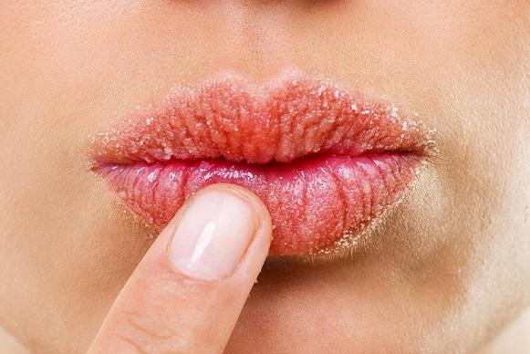 los síntomas de la boca seca, boca seca en majadahonda, sequedad en la boca majadahonda, sequedad bucal majadahonda, dentista majadahonda, odontólogo majadahonda, odontología majadahonda, mal aliento majadahonda, caries dental majadahonda, revisión dental majadahonda