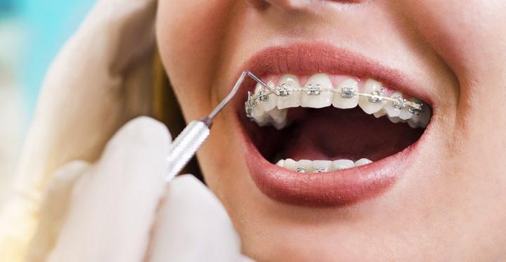 qué es la ortodoncia, ortodoncista en majadahonda, ortodoncia en majadahonda, enderezar los dientes en majadahonda, corregir la posición de los dientes en majadahonda, odontólogo en majadahonda, odontología en majadahonda, dentista majadahonda, clínica dental majadahonda, revisión dental majadahonda, sonrisa majadahonda, estética dental majadahonda