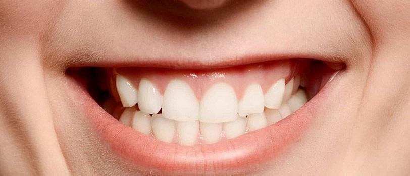apretar y rechinar los dientes en majadahonda, bruxismo majadahonda, apretar los dientes en majadahonda, rechinar los dientes en majadahonda, dentista majadahonda, odontólogo majadahonda, clínica dental majadahonda, revisión dental majadahonda, diente roto majadahonda, diente fracturado majadahonda, diente astillado majadahonda, revisión dental majadahonda