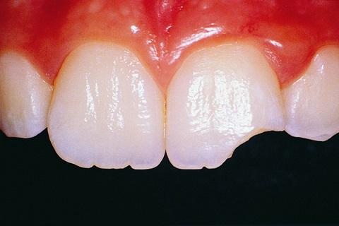 diente roto o fracturado, diente roto en boadilla, diente fracturado en boadilla, dentista boadilla, odontólogo boadilla, clínica dental boadilla, revisión dental boadilla, implante dental boadilla, corona dental boadilla