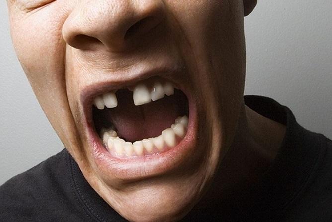 pérdida de dientes, dientes ausentes en majadahonda, estética dental en majadahonda, implantes dentales en majadahonda, coronas dentales en majadahonda, puentes dentales en majadahonda, clínica dental en majadahonda, dentista en majadahonda, odontólogo en majadahonda, revisión dental en majadahonda, odontología majadahonda, salud dental majadahonda