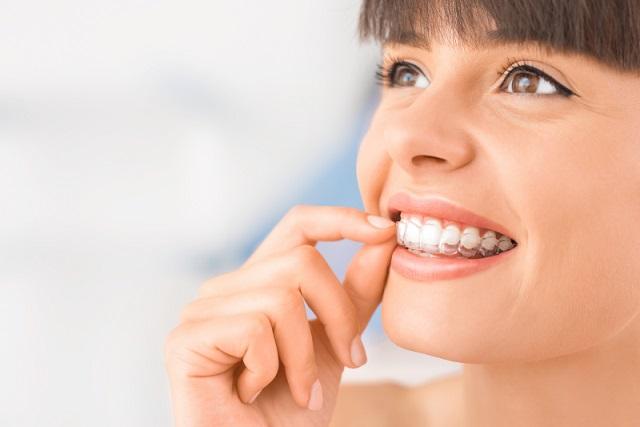 8 beneficios de invisalign, invisalign en boadilla, clínica dental boadilla, ortodoncia en boadilla, ortodoncia invisible en boadilla, alineador invisible en boadilla, alineador transparente en boadilla, enderezar los dientes en boadilla
