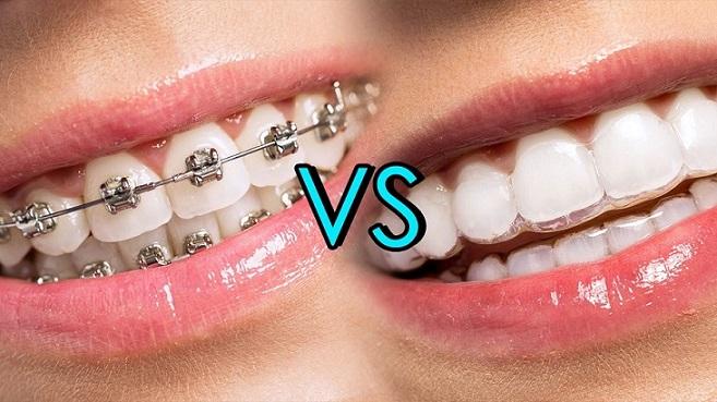 razones para elegir invisalign, invisalign en boadilla, ortodoncista en boadilla, dentista en boadilla, clínica dental boadilla, odontólogo boadilla, odontología boadilla, ortodoncia en boadilla, ortodoncia invisible en boadilla, ortodoncia transparente en boadilla, alineadores invisibles en boadilla, brackets en boadilla, enderezar los dientes en boadilla