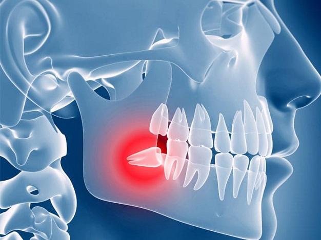 quitar las muelas del juicio, muelas del juicio en majadahonda, salud bucal majadahonda, dentista majadahonda, odontólogo majadahonda, odontología majadahonda, clínica dental majadahonda, revisión dental majadahonda, dolor de dientes en majadahonda, caries dental majadahonda, encías inflamadas en majadahonda