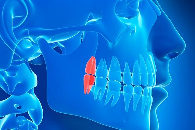 extraer las muelas del juicio, muelas del juicio en boadilla, muela del juicio en boadilla, sonrisa boadilla, dentista boadilla, odontólogo boadilla, odontología boadilla, clínica dental boadilla, revisión dental boadilla, dolor de dientes boadilla, salud oral boadilla