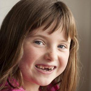 Acuda a la clinica dental infante don luis (dentalarroque boadilla) para mantener la salud dental infantil sana. El odontopediatra ofrece 9 consejos de cuidado bucal de los niños. Vigila los buenos habitos de higiene oral.
