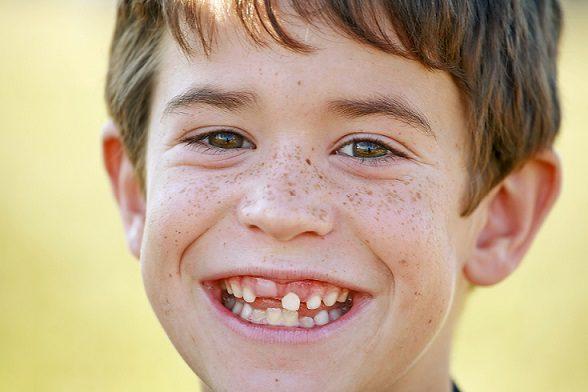 5 razones para cuidar los dientes de leche, dientes de leche en boadilla, dientes primarios en boadilla, dientes permanentes en boadilla, dentista boadilla, clínica dental boadilla, odontólogo boadilla, odontología boadilla, revisión dental boadilla, salud bucal boadilla, limpieza dental boadilla, higiene oral en boadilla, odontopediatra boadilla, odontopediatría boadilla, dentista infantil boadilla, dentista para niños boadilla, odontólogo infantil boadilla, odontólogo para niños boadilla, caries dental boadilla