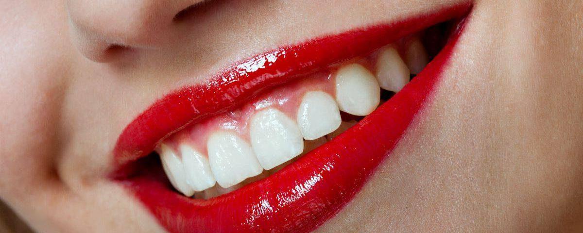 5 razones para poner carillas dentales, carillas dentales en boadilla, estética dental en boadilla, odontología en boadilla, odontólogo boadilla, clínica dental boadilla, dentista boadilla, carillas estéticas en boadilla, sonrisa en boadilla, salud oral en boadilla, autoestima en boadilla