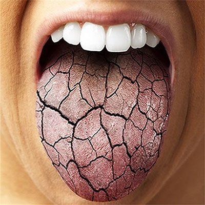 6 causas de la boca seca, dentalarroque, boadilla, boadilla del monte, boca seca en boadilla, sequedad bucal en boadilla, saliva en boadilla, dentista en boadilla, odontólogo en boadilla, odontología en boadilla, clínica dental en boadilla, revisión dental en boadilla, salud bucal en boadilla, medicamentos en boadilla, fumar en boadilla