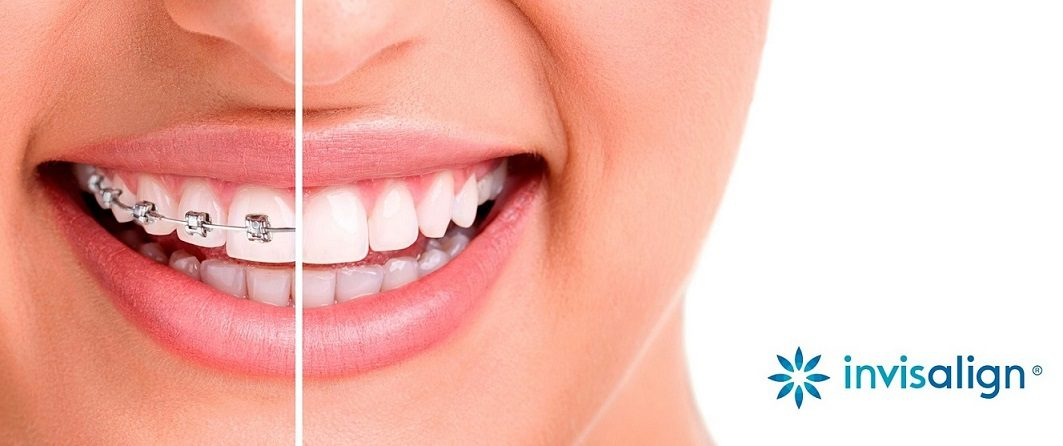 beneficios de invisalign