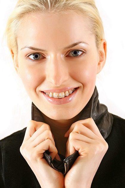beneficios de la ortodoncia, ortodoncia majadahonda, enderezar los dientes majadahonda, corregir la posición de los dientes majadahonda, dentista majadahonda, sonrisa majadahonda, dientes radiantes majadahonda, sonrisa perfecta majadahonda, ortodoncista majadahonda, revisión dental majadahonda
