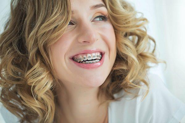 brackets para los adultos, brackets en boadilla, ortodoncia en boadilla, alineadores en boadilla, aparato dental en boadilla, ortodoncista en boadilla, clínica dental boadilla, dentista boadilla, sonrisa en boadilla, dientes alineados en boadilla