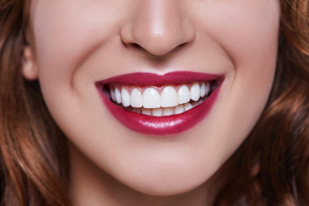 carillas dentales en majadahonda, carillas majadahonda, dentista majadahonda, clínica dental majadahonda, odontólogo majadahonda, odontología majadahonda, sonrisa majadahonda